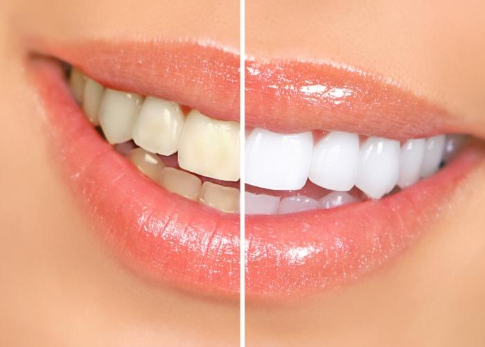 歯が痛まないまったく新しいホームホワイトニングで誰よりも魅力的な笑顔を手に入れる!