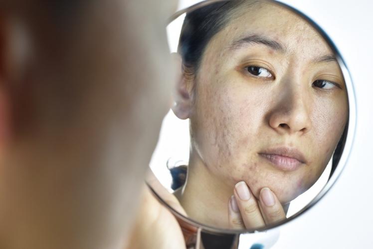 肌荒れ・かゆみ・乾燥肌は女性ホルモン低下のサイン!? 更年期で ...